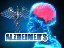 Mécanismes et secrets de la maladie d'Alzheimer